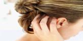 وصفات و خلطات طبيعية لعلاج الحكة في فروة الرأس