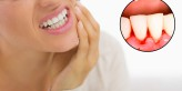 علاج نزيف الأسنان و اللثة بالأعشاب الطبيعية